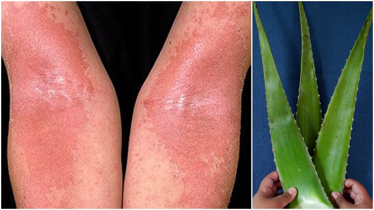 Cum poți diferenția pielea uscată de cea deshidrată?