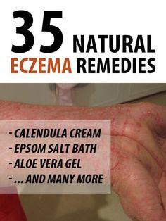 eczema de slabire