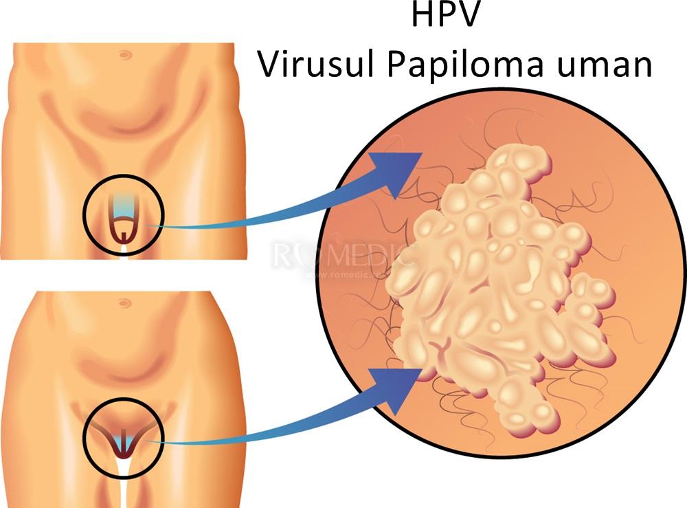 scădere în greutate de la HPV)