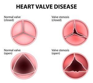 va scădea în greutate ajută stenoza aortică)