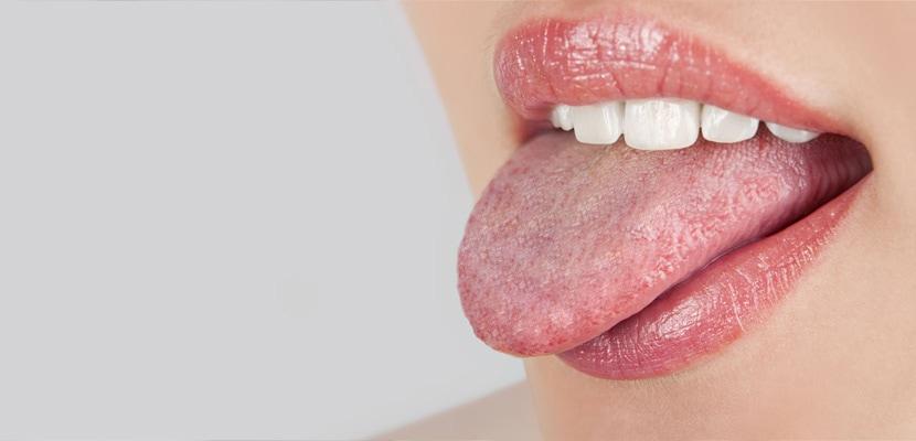 slăbire bucală
