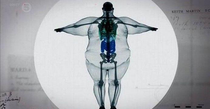 slăbește om obez