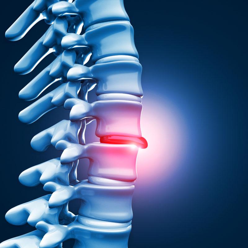 scăderea în greutate ajută la stenoza coloanei vertebrale