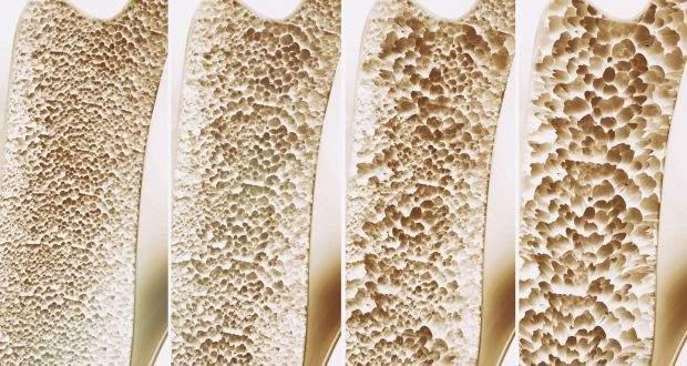 densitatea osoasă și pierderea în greutate