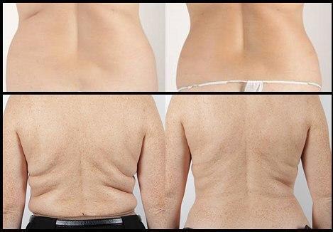 pierderea în greutate sriracha Sfaturi pentru pierderea în greutate de 2 săptămâni