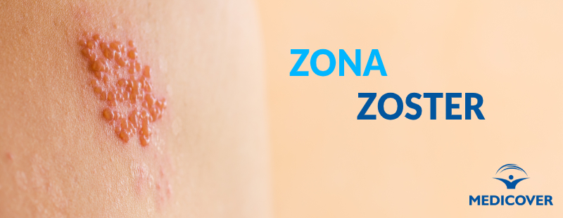 Zona Zoster sau nevralgie intercostală?