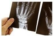 Osteoporoza: cauze, simptome si tratament | sudstil.ro