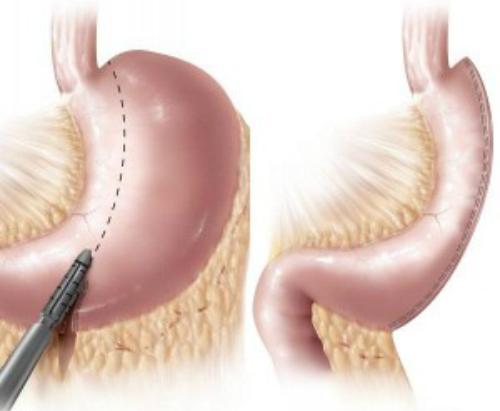 operație bariatrică pentru a slăbi)