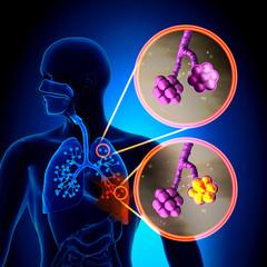 scădere în greutate din cauza pneumoniei
