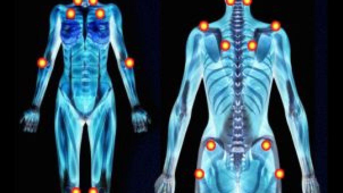 durerile de corp pierderea în greutate oboseala scăderea în greutate a minimului