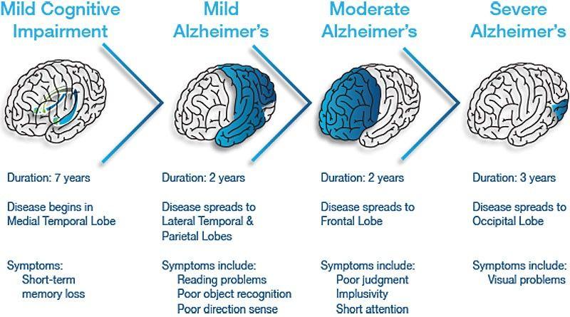 Tot ce trebuie sa stii despre Alzheimer: cauze, simptome, tratament