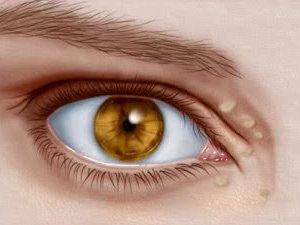 Trei moduri de a indeparta grasimea din jurul ochilor