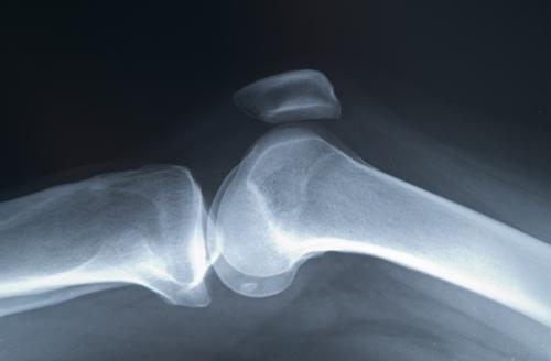 scăderea în greutate ajută osteoporoza