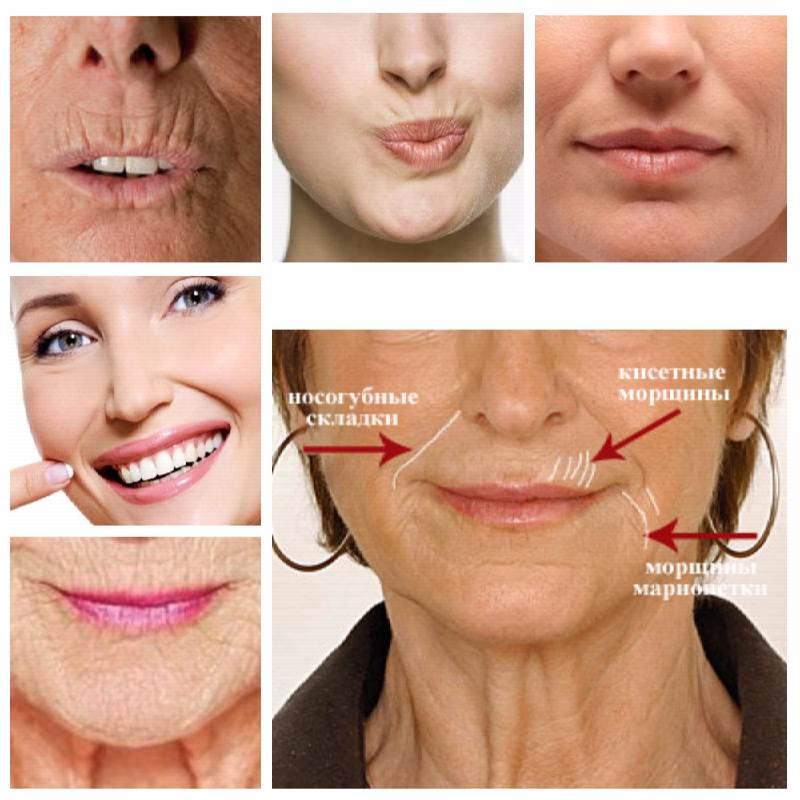 cum să elimini grăsimea superioară a buzelor Pierdere de grăsime de 5 săptămâni