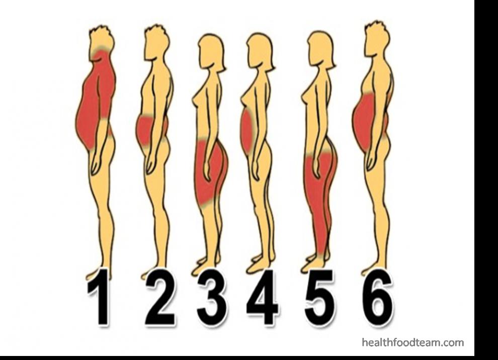 cum să slăbești când obezi)