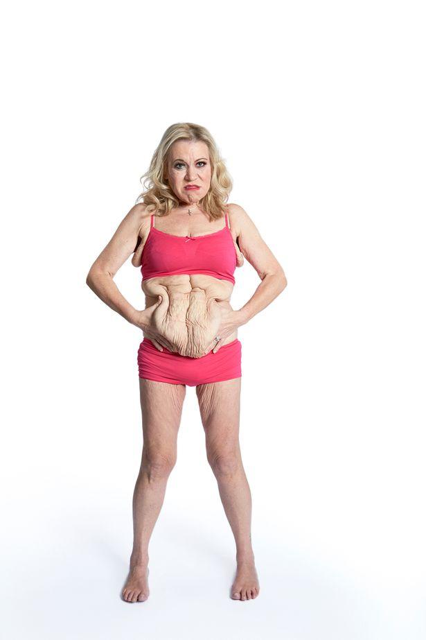 cel mai bun combos de ardere a grăsimilor Shreveport de pierdere în greutate