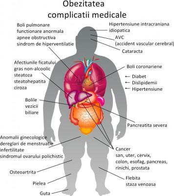stimulează-ți metabolismul și arderea grăsimilor lic pierdere în greutate mod natural