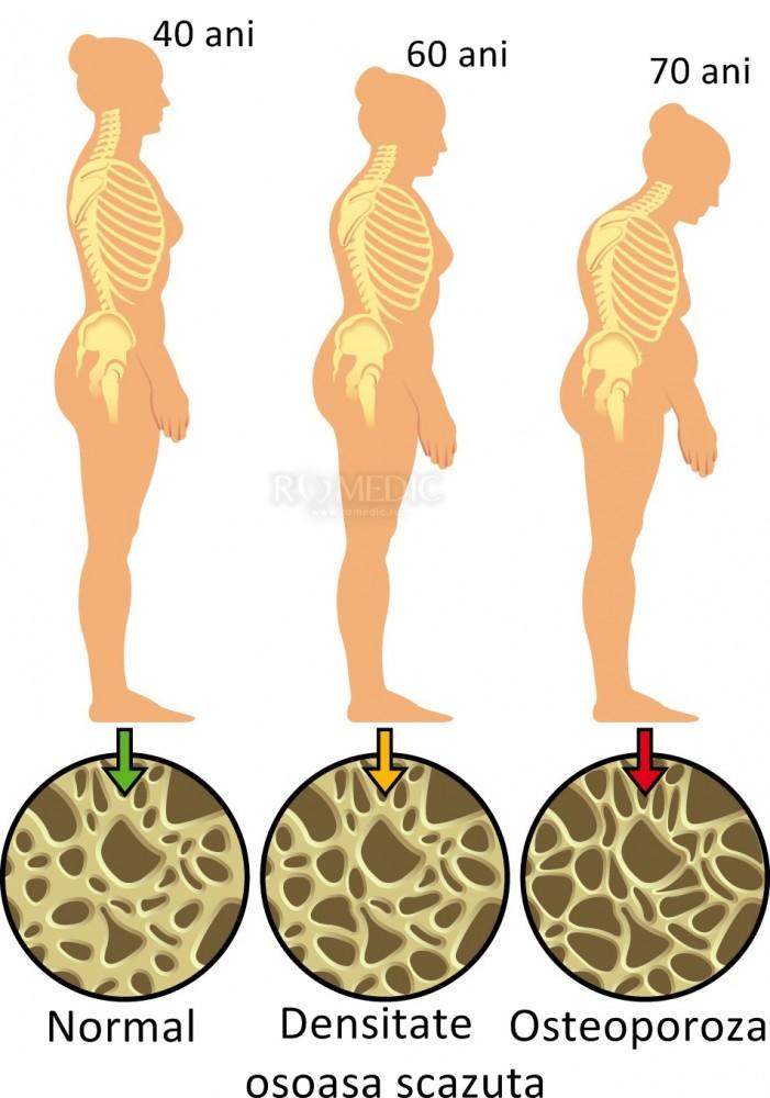 scădere în greutate din cauza osteoporozei