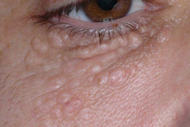 Trei moduri de a indeparta grasimea din jurul ochilor • Buna Ziua Iasi • sudstil.ro