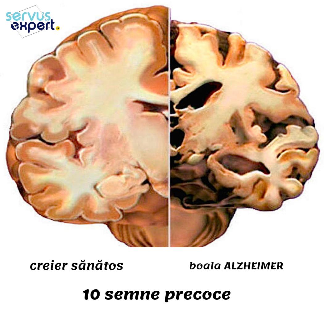 Pierdere în greutate semn precoce de demență)