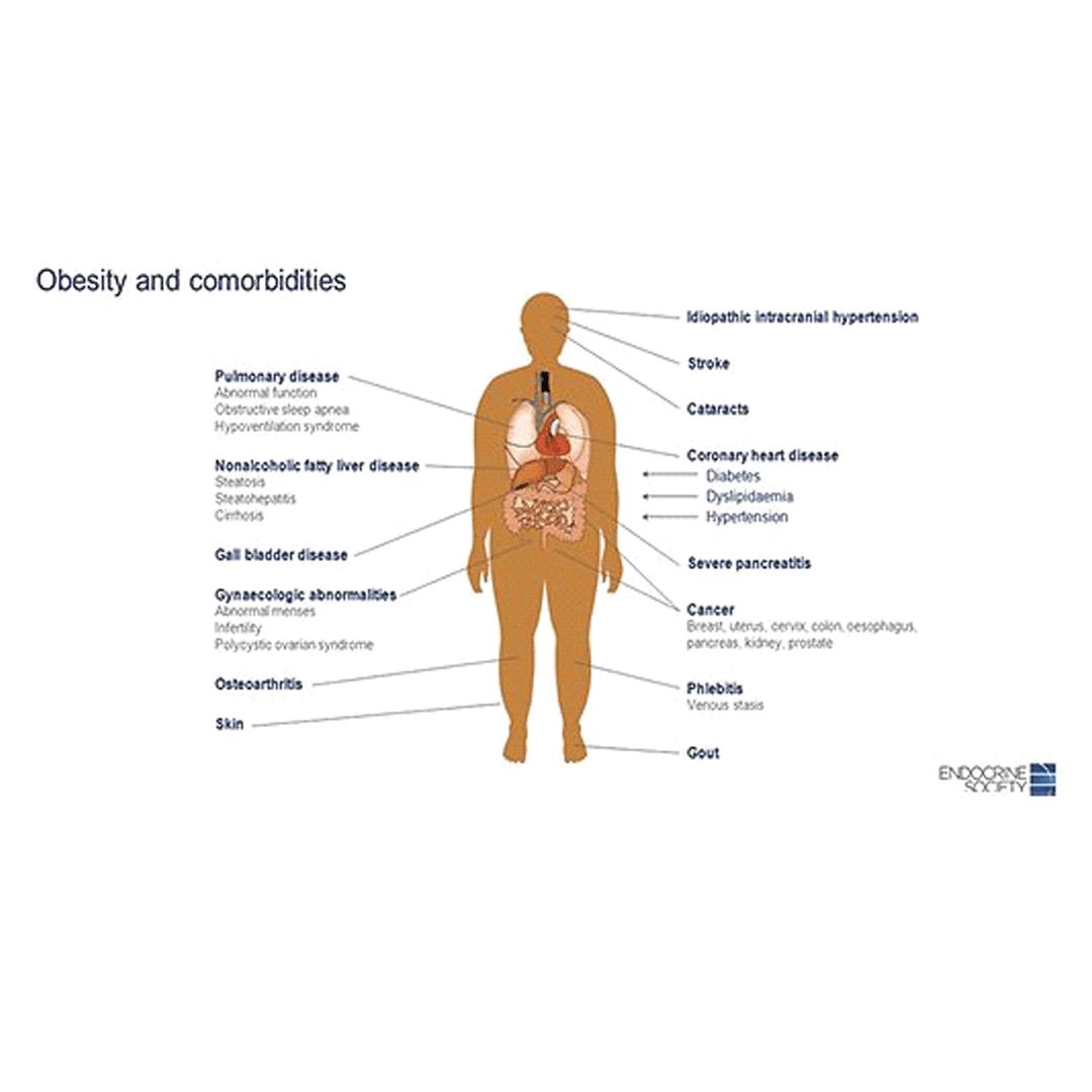 pierdere în greutate sigură pentru obezi morbid)