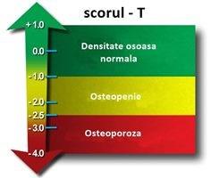 pierderea în greutate densitatea osoasă)