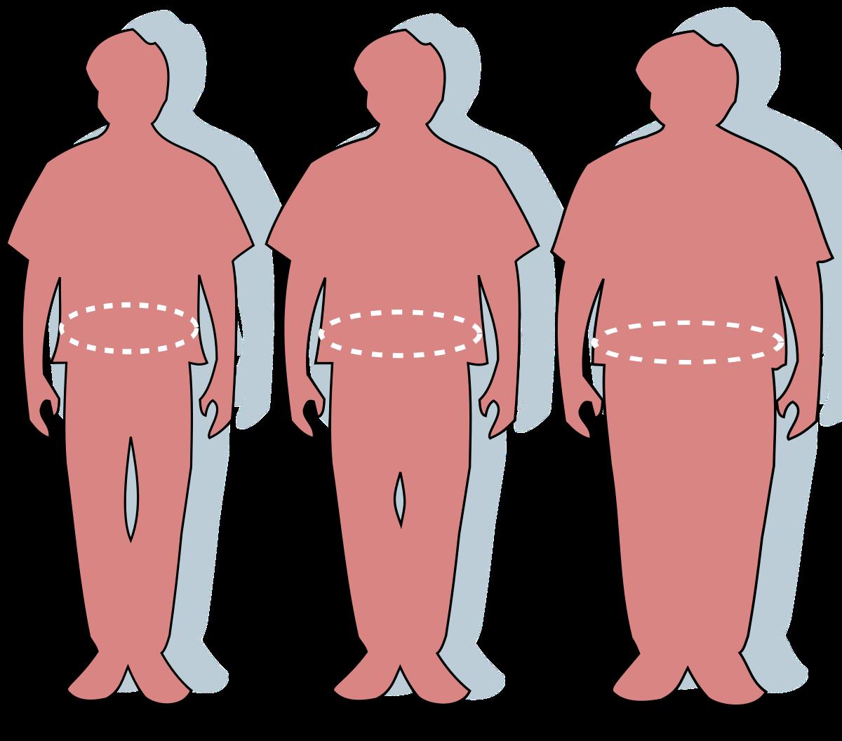 obezitatea pierde în greutate)
