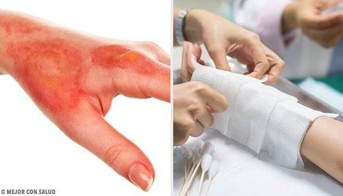 Arsurile solare: cauze, simptome si tratament