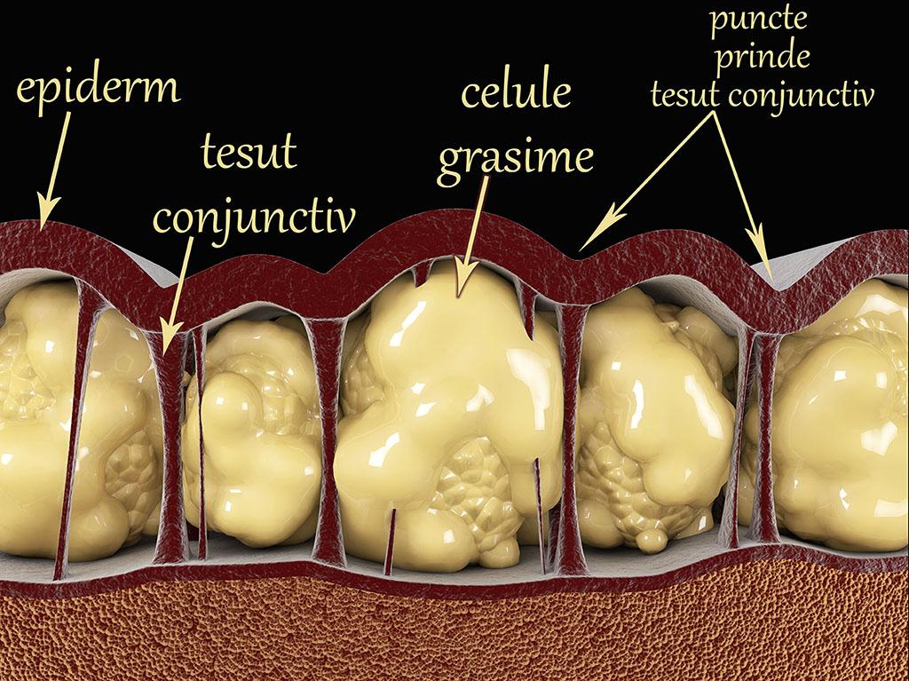 corpul tău pierde celulele grase