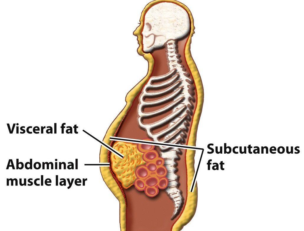 cum să pierzi grăsimea din corpul inferior
