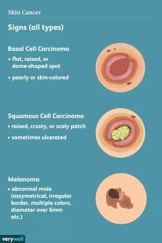 12 Alimente pentru a evita cu IBS: Ce să nu mănânce, Hematologie & oncologie