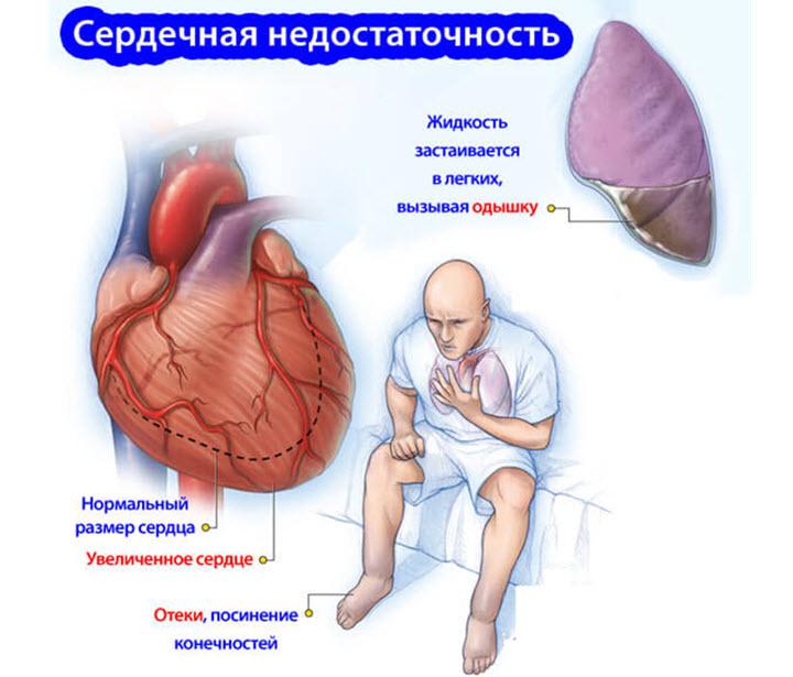 insuficiență de organ simptome pierdere în greutate